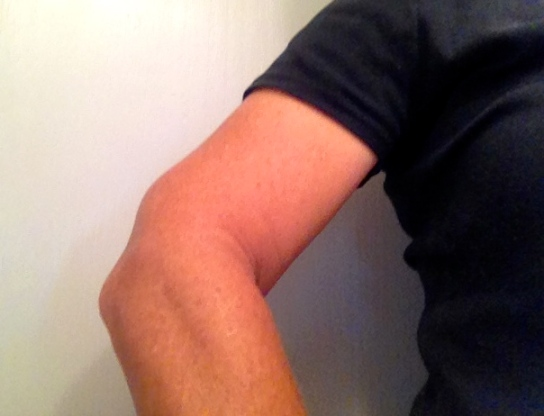 Yep. A third elbow. Just what I always wanted.